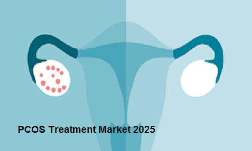PCOS Treatment Market to Witness Significant Growth until 2025 – TechSci Research